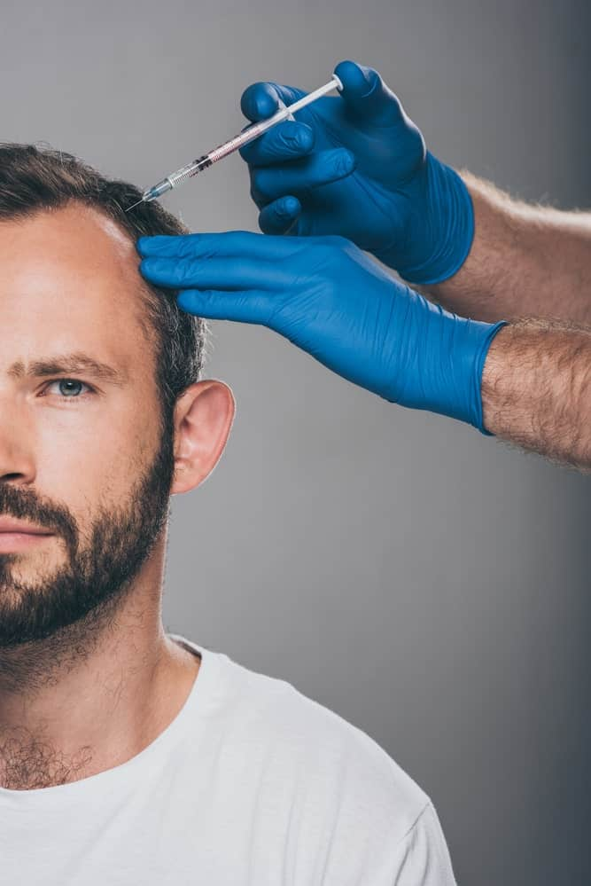 Anasthetic-applied-to-hair-transplant-patient