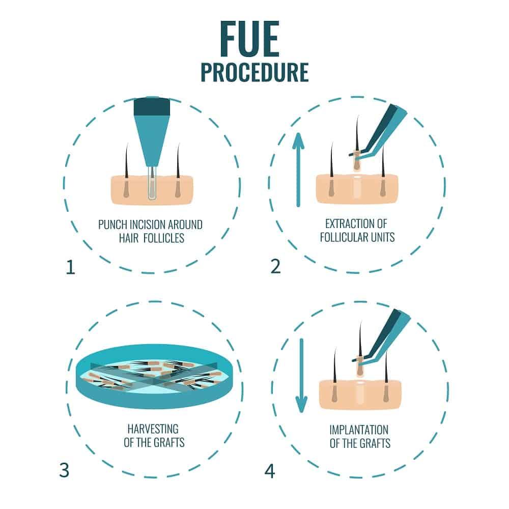 Follicular Unit Extraction 1