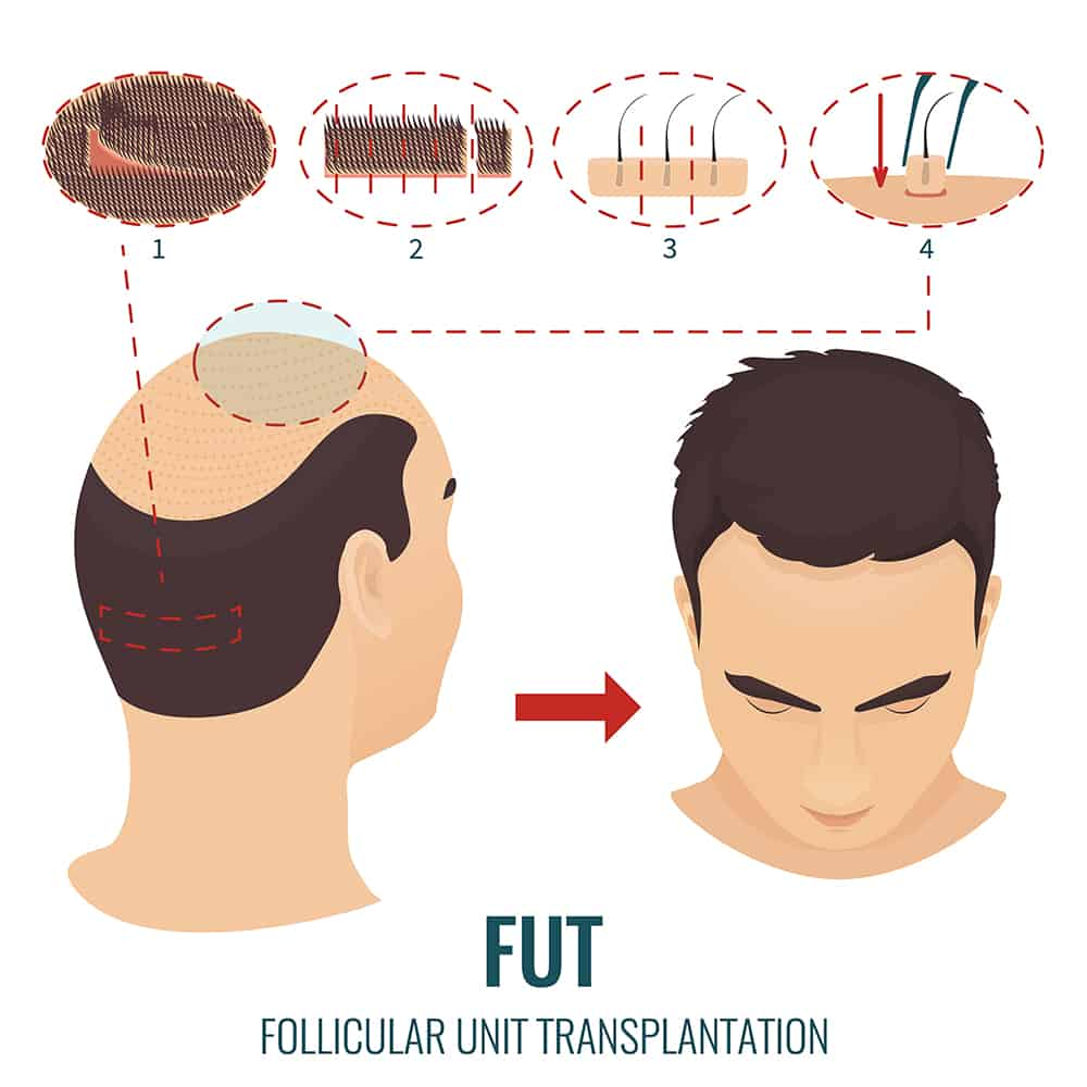 Follicular Unit Transplant 1