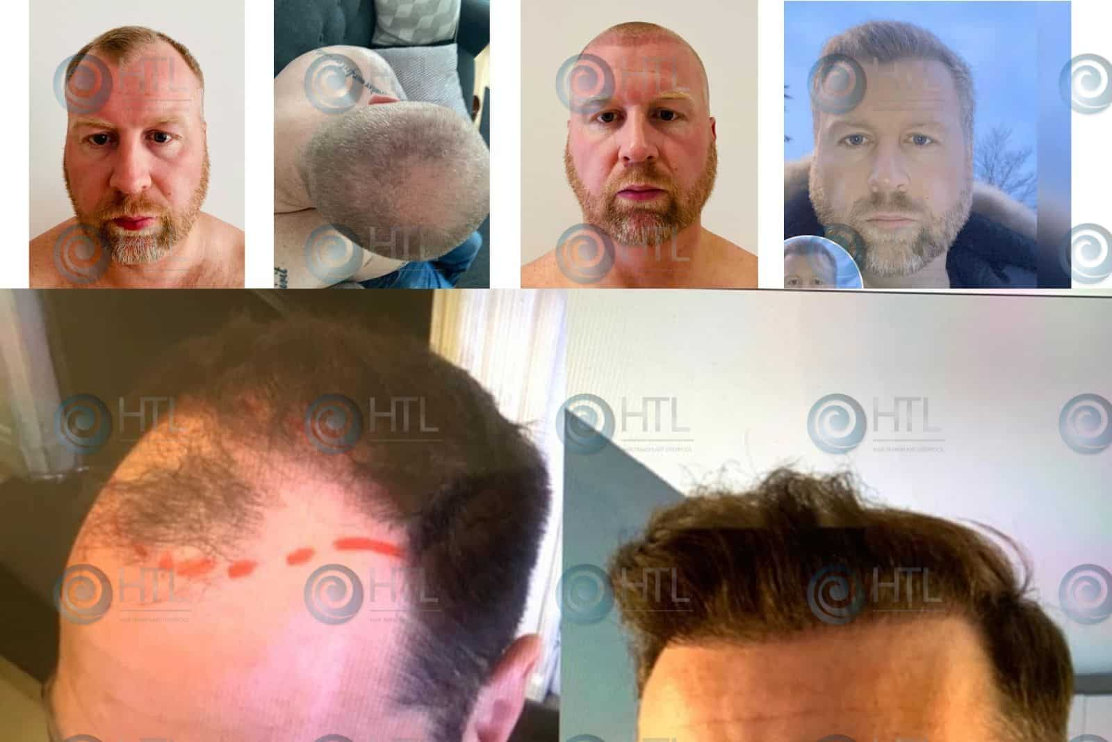 Hair Transplant Liverpool Clients before and after