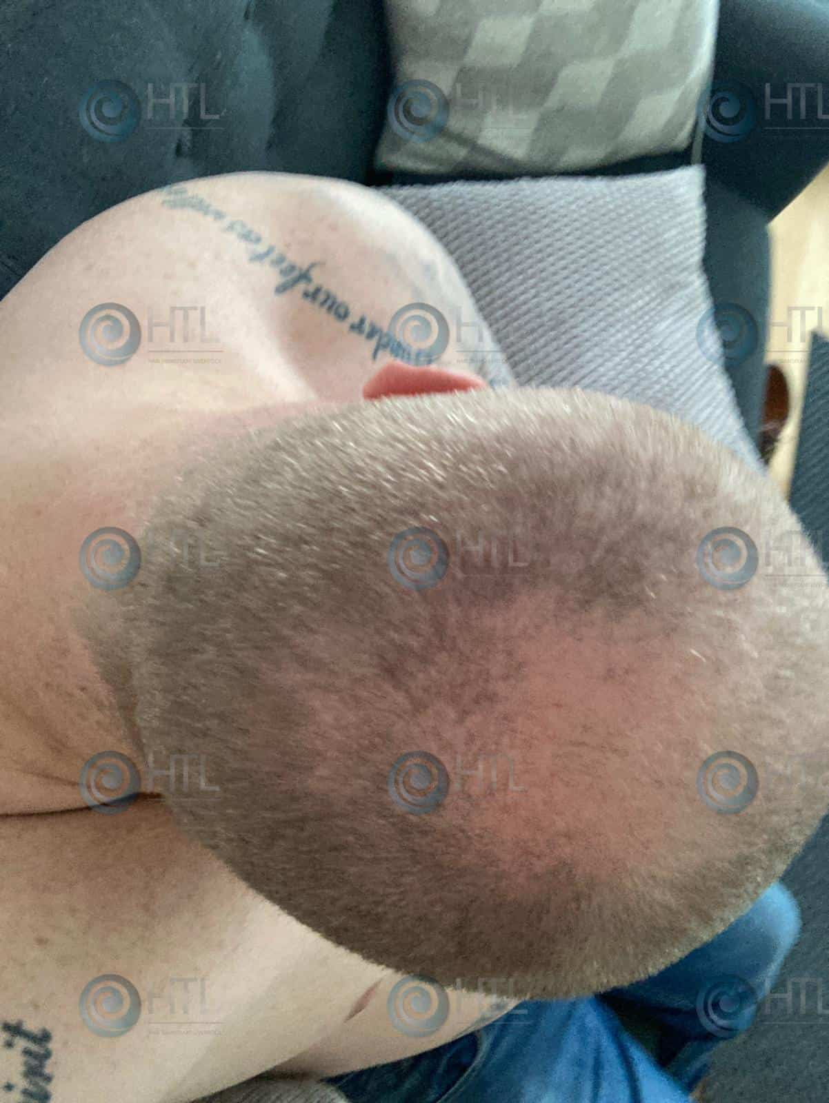 Hair-Transplant-Liverpool-Clinic-Client-before-surgery-hair-loss-on-crown