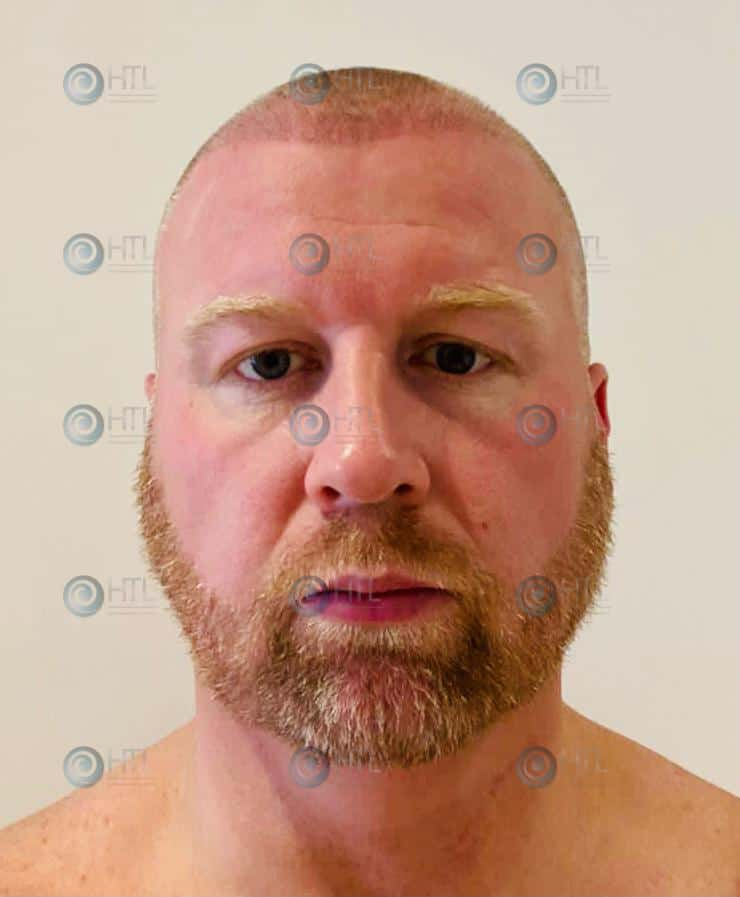 Hair-Transplant-Liverpool-clinic-client-post-surgery