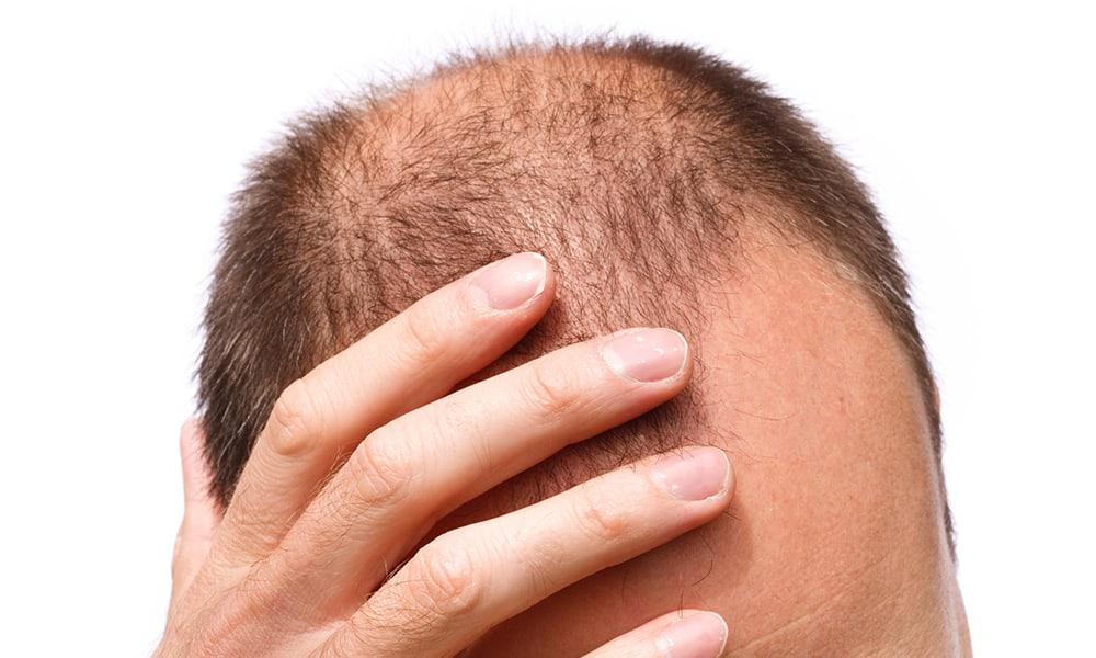 Male Pattern Baldness 1