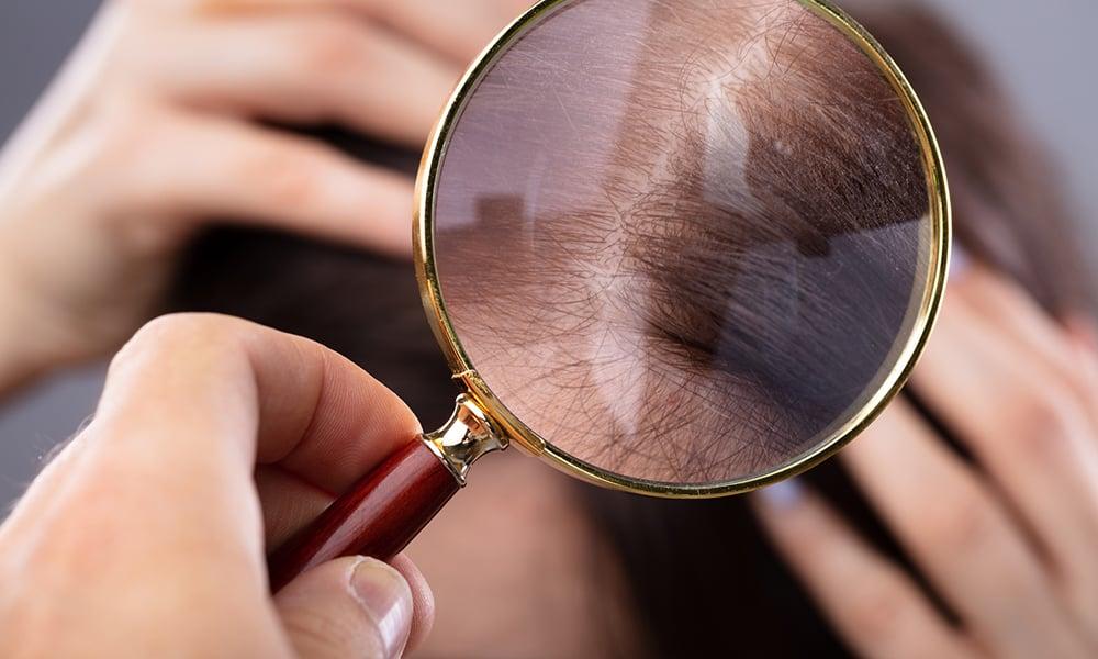 Scalp Micropigmentation 1
